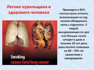 Легкие курильщика.
