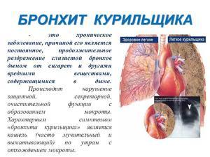 Кашель курильщика - симптомы и лечение