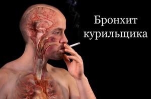 Бронхит курильщика: симптомы