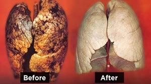 Методы очистить бронхи и лёгкие курильщика
