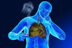Легкие сигареты могут повышать риск рака
