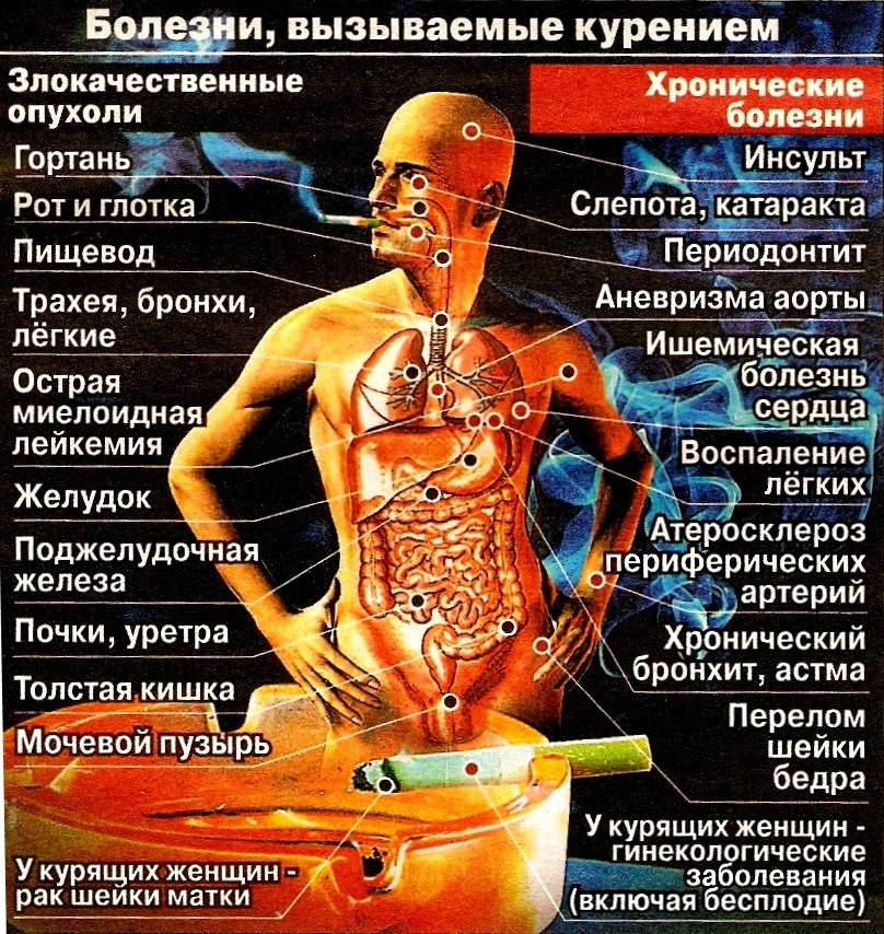 Болезни, вызванные курением: последствия от сигарет, симптомы распространённых заболеваний курильщиков